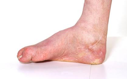 Charcot foot 2 image