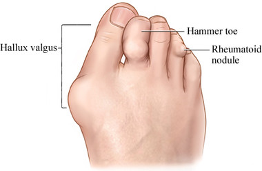 RV foot diagram