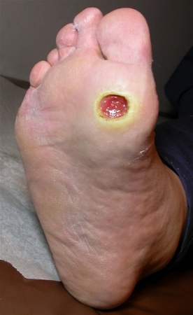 Ulcer on ball of foot